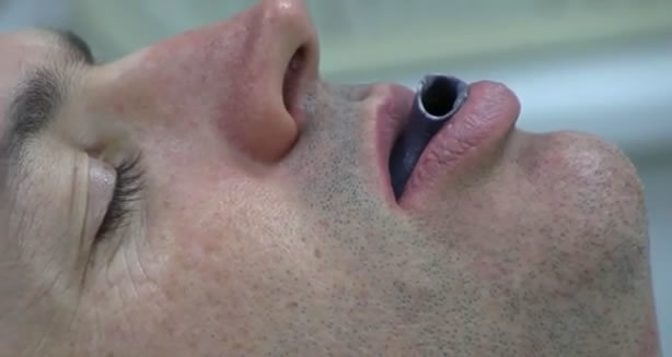 Impresora 3D-Apnea del sueño-2